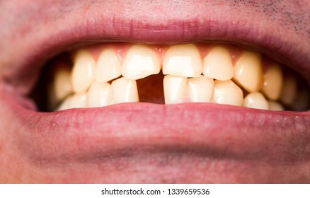 Yellow teeth. Bad dental health, no teeth, no fluoride, tooth erosion. Yellow bad teeth. Man without one front tooth. No teeth. Smile men with a lost front tooth, toothache.