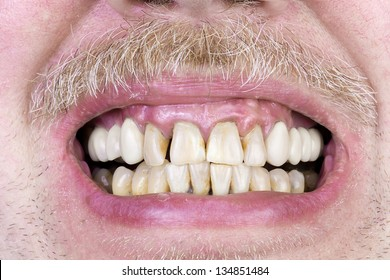 Yellow teeth, diseased gums, yellow men's skin  mustache and tooth ceramic crowns  limbs macro. The harm of alcohol and tobacco concept. Selective focus