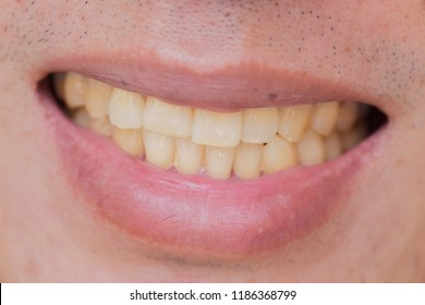 yellow teeth in male from smoke and coffee