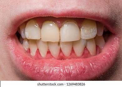Yellow uneven broken teeth close