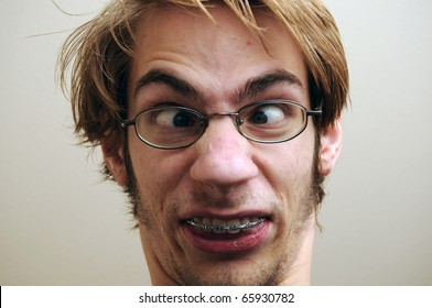 Young adult making a ridiculous facial expression. He is wearing braces and glasses.