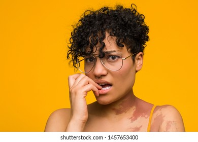 Young african american woman with skin birth mark biting fingernails, nervous and very anxious.