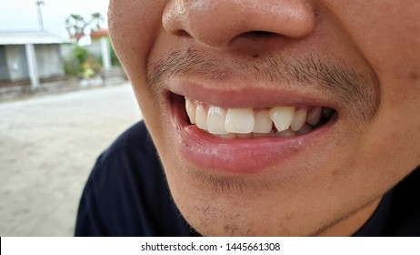 A young asian man with crowding teeth.