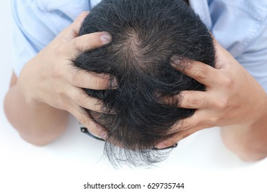 Young Asian man having serious hair loss problem