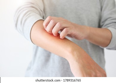 Young asian man itching and scratching on arm from itchy dry skin eczema dermatitis