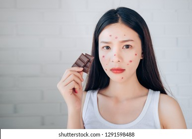 Young Asian Woman Acne Problem Face with Chocolate bar UnHappy Eating,His Stressful face.