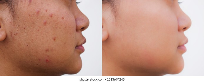 Young Asian woman before and after spot scar acne facial treatment. Problem skincare and health concept.