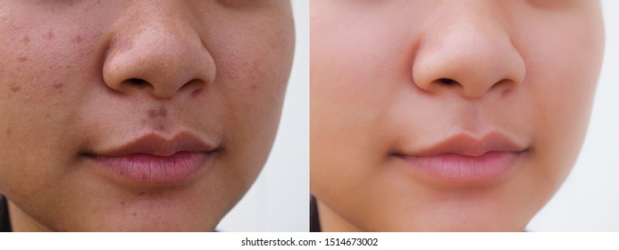 Young Asian woman before and after spot acne scar facial treatment. Problem skincare and health concept.