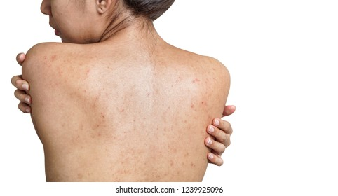 Back Acne Images Stock Photos Vectors Shutterstock