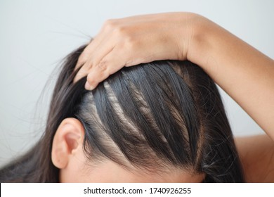 Young asian woman having serious thin hair problem.