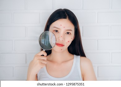 Young Asian woman holding Magnifying glass check acne her face problem.