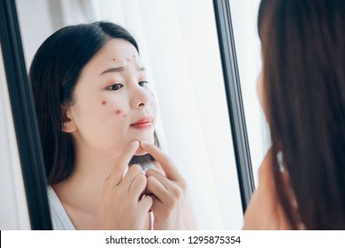 Young Asian woman squeeze acne problem face looking at mirror her without Skincare.