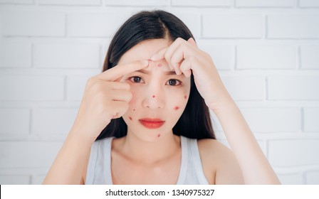 Young Asian woman squeeze acne forehead problem face looking at mirror her without Skincare.