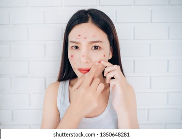 Young Asian woman squeeze acne cheeks problem face looking at mirror her without Skincare.
