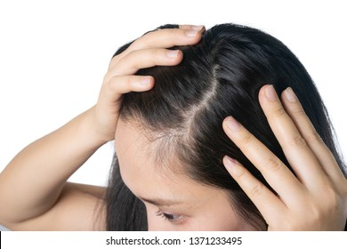 Young Asian women worry about problem hair loss,head bald,dandruff.hair loss problem and Hair treatment concept