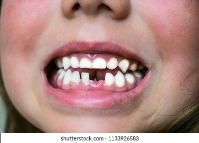 Young baby's teeth are shown close-up. A child's smile without one tooth.