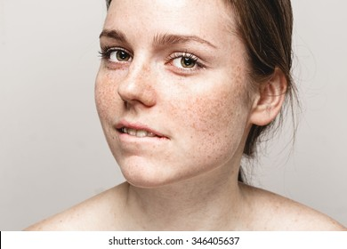 Young beautiful freckles woman face portrait with healthy skin bite lips