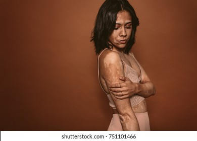 Young beautiful woman affected with vitiligo standing against brown background. Female with vitiligo affected pigmentation on body.