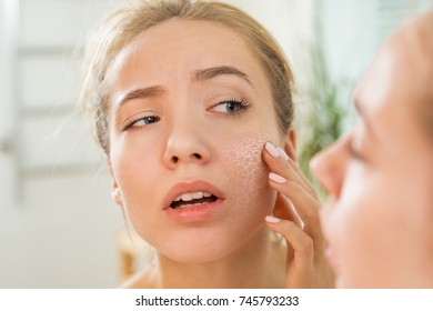 Young beautiful woman touching skin in bathroom. Unhappy girl standing in towel, looking in the mirror, checking dry irritated skin. Morning skincare routine.