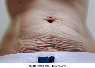 young belly but flabby postpartum with wrinkles