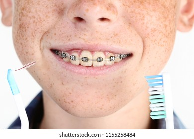 Young boy with dental braces and toothbrushes
