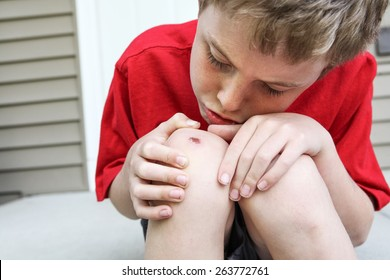 Young boy examining a scraped knee