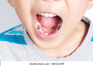 Young boy with mouth wide opened showing several tooth fillinga