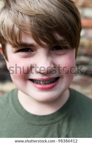 Young boy with new braces