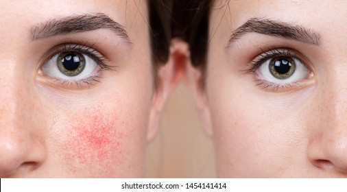 A young Caucasian girl shows the before and after results of intensive light surgery to remove the symptoms of rosacea. A noticeable reduction in cheek redness is seen.