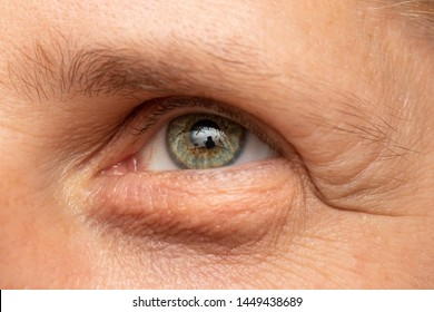 A young Caucasian guy is seen close-up. Macro shot on his eye showing a puffy and swollen eye bag. Fluid retention in the delicate skin below the eye.