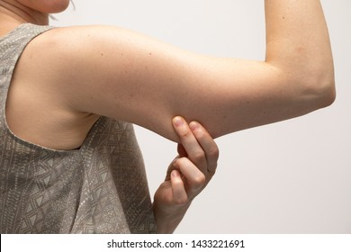 A young Caucasian woman wearing a crop top is seen up close against a white background. Pinching the loose and saggy muscles in the upper arm. Considering arm lift surgery.
