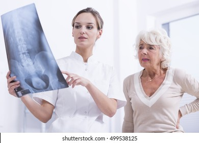 Young doctor describing the X-Ray photo of a spine to senior woman