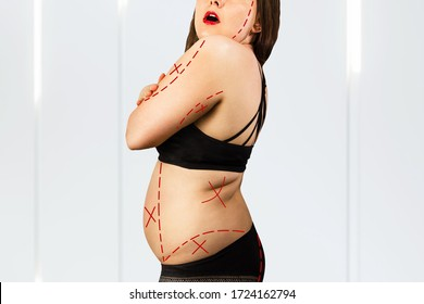 Young fat woman in underwear holds fat folds in hands and preparing for liposuction.