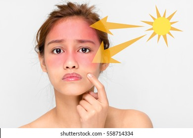 young female with a bad sunburn on her face