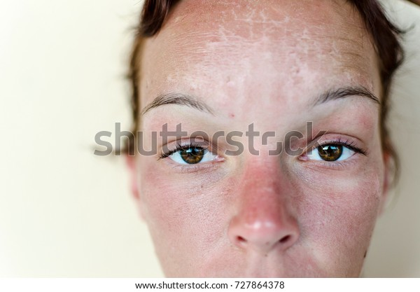 Young female with a bad sunburn on her face. Therapy and treatment for red burn face.