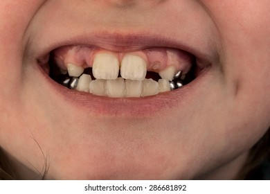 Young female child's teeth, image shows missing baby teeth and the start of the adult teeth coming through the gums, also shows metal crowns on the rear teeth