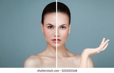 Young Female Face with Skin Problem and Clear Skin. Woman Showing Empty Copy Space on the Open Hand. Unhealthy and Healthy Skin After Treatment. Facial Treatment, Medicine and Cosmetology Concept