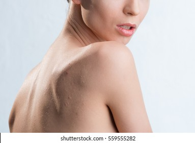 Young girl with acne on his back