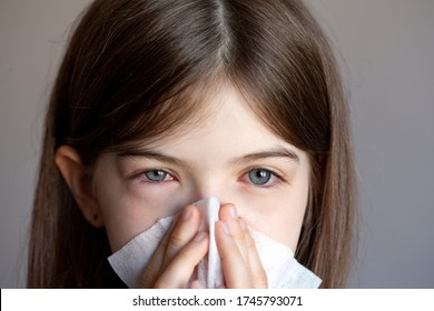 The young girl is allergic, she blows her nose in a napkin. Conjunctivitis, lacrimation, red eyes