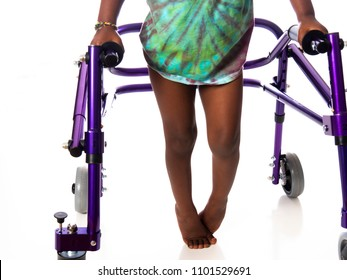 Young girl with cerebral palsy on white background