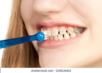 Young girl cleans braces, close-up, on a white background, studio photography