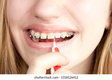 Young girl cleans the braces with a toothbrush, close-up, studio photography