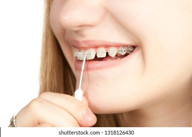 Young girl cleans the braces with a toothbrush, close-up, on a white background, studio photography