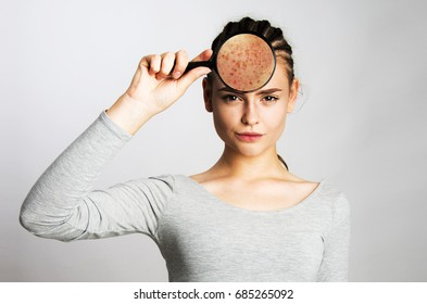 Young girl having skin problems. holding magnifier face skin close up