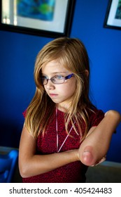 A young girl looks forlorn with a burn on her elbow which has blistered and popped.