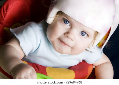 Young girl with plagiocephaly wearing a helmet while playing around