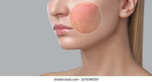 A young girl with a problem skin. Photo before and after treatment for acne and Demodecosis. Skin treatment, spa treatments. Cosmetology and professional skin care. - Shutterstock ID 1676540359