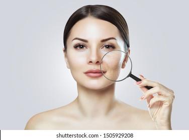 Ein junges Mädchen mit einer problematischen Haut. Sie zeigt problematische Haut durch eine Vergrößerung. Foto vor und nach der Akne-Behandlung. Kosmetologie und Hautpflege.