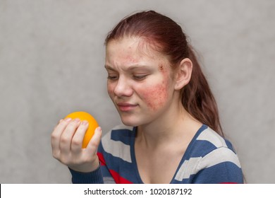 a young girl with a red rash on her face holds an orange in her hands. Food Allergy