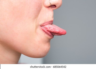 Young girl showing her tongue after candidiasis treatment